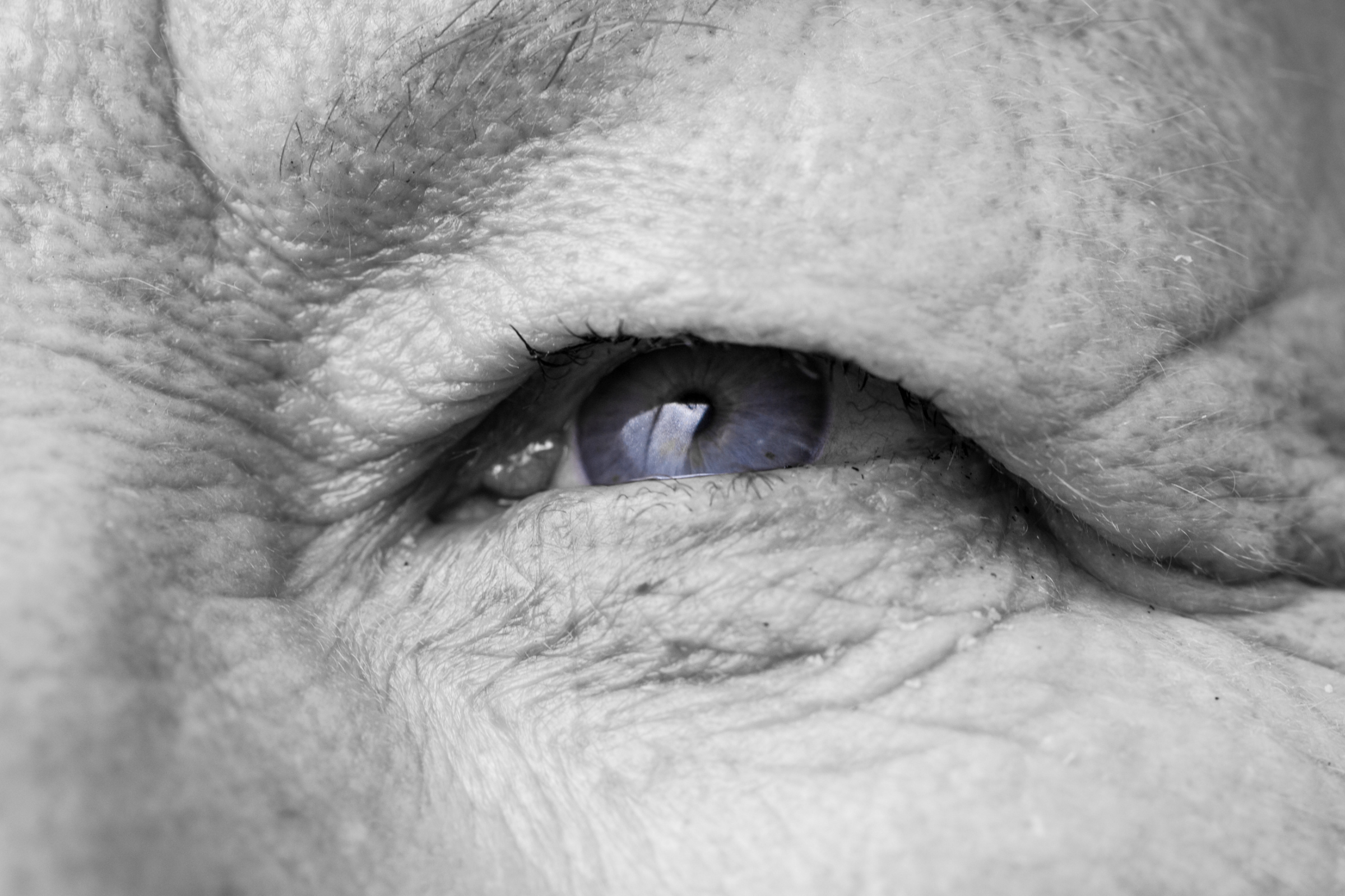 Rimedi retinopatia-diabetica Metodo boel Bologna Dr Vanzini